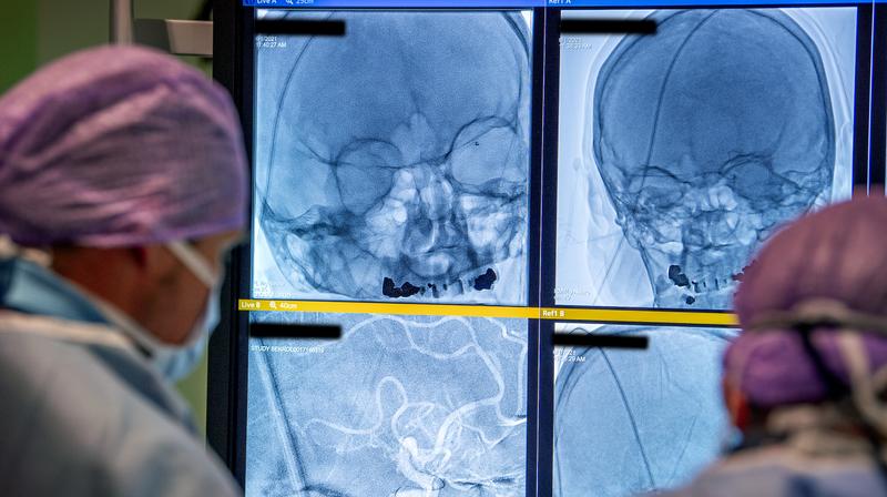Första patienten. Teamet arbetar och i bakgrunden syns patientens röntgenbilder.